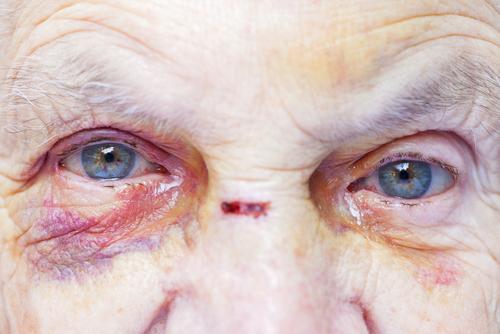 Nantes : Trois personnes âgées agressées sexuellement dans une maison de retraite